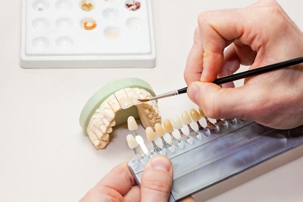 studium techniki dentystycznej plock dentysta stomatolog protetyka protetyka stomatologii protetyki zeby nauka studia na dentyste nauka dentystyczna studia dentystyczne